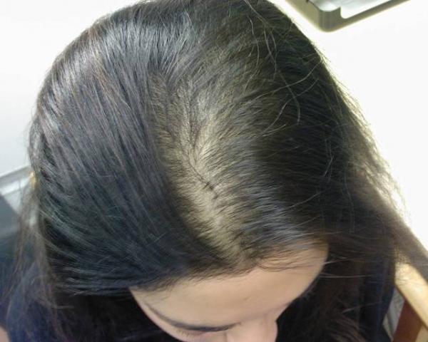 خلطة لتكثيف الشعر الخفيف المرأة والصحة الصباح العربي