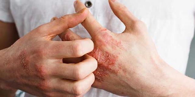 الامراض الجلدية الاكثر انتشارا المرأة والصحة الصباح العربي