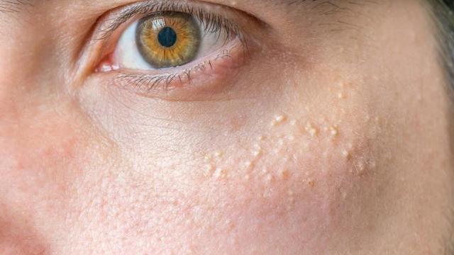 علاج الحبوب البيضاء تحت الجلد في الوجه المرأة والصحة الصباح العربي