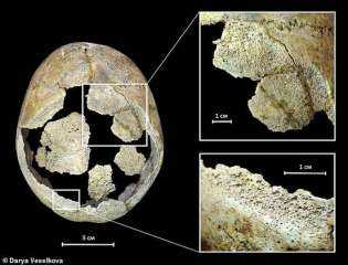 """""""مشرط حجري"""".. جمجمة تكشف عن عمل جراحي فاشل حدث قبل 5 آلاف عام.. صور وفيديو"""