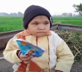 بالفيديو.. في حالة نادرة.. شاب عمره 21 عاما يعيش على الرضاعة والألبان
